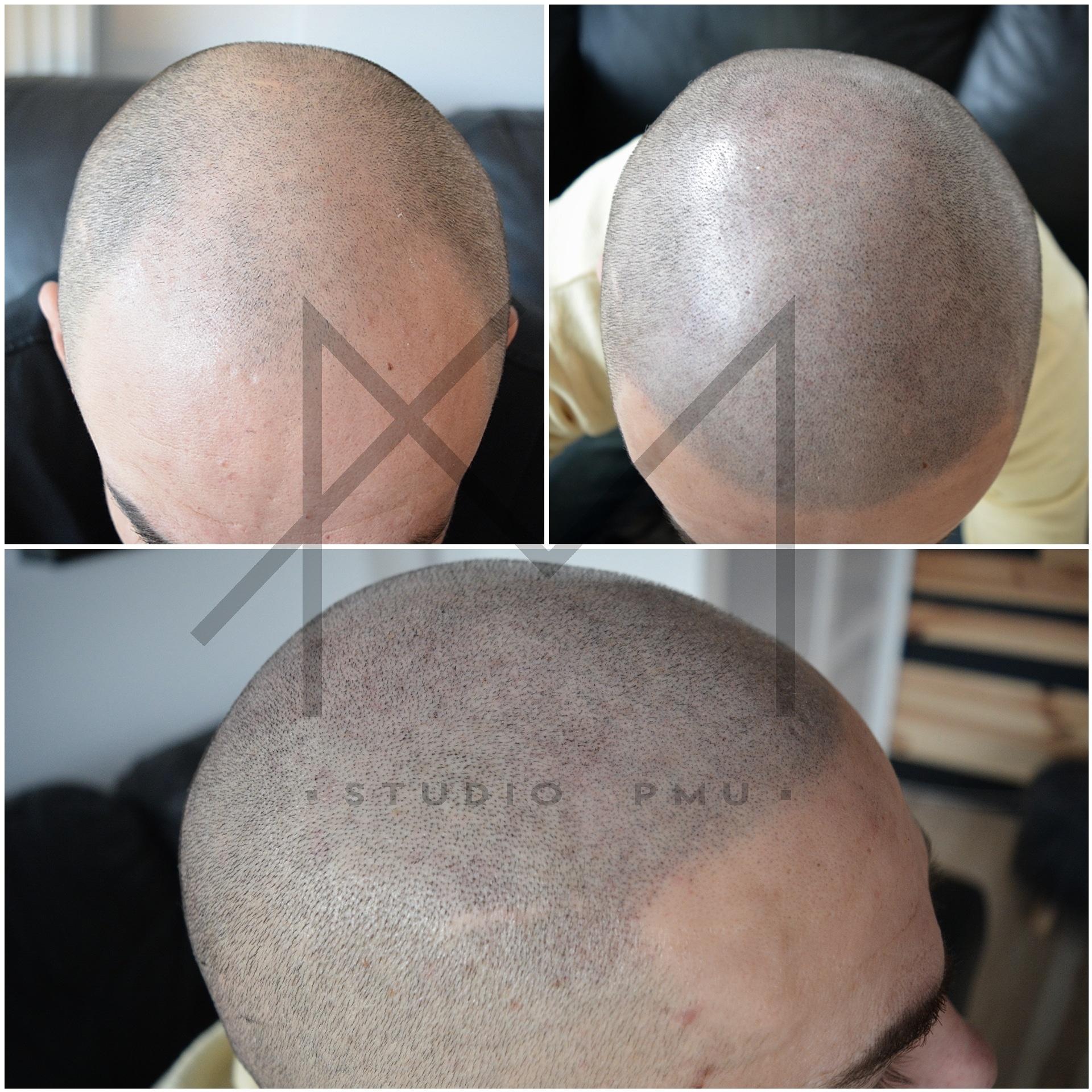 Mikropigmentacja Skóry Głowy Mikropigmentacja Medyczna Włosów Łódź Mikropigmentacja Głowy qc