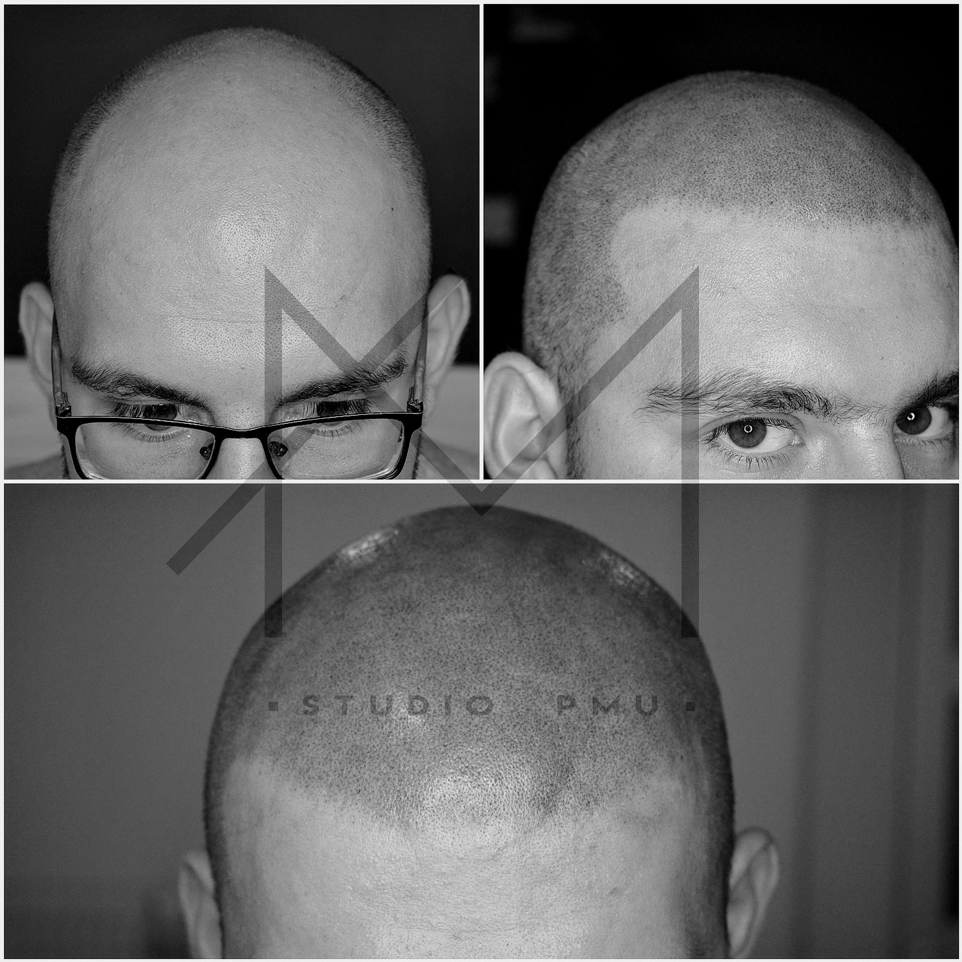 Mikropigmentacja Skóry Głowy Mikropigmentacja Medyczna Włosów Łódź Mikropigmentacja Głowy q