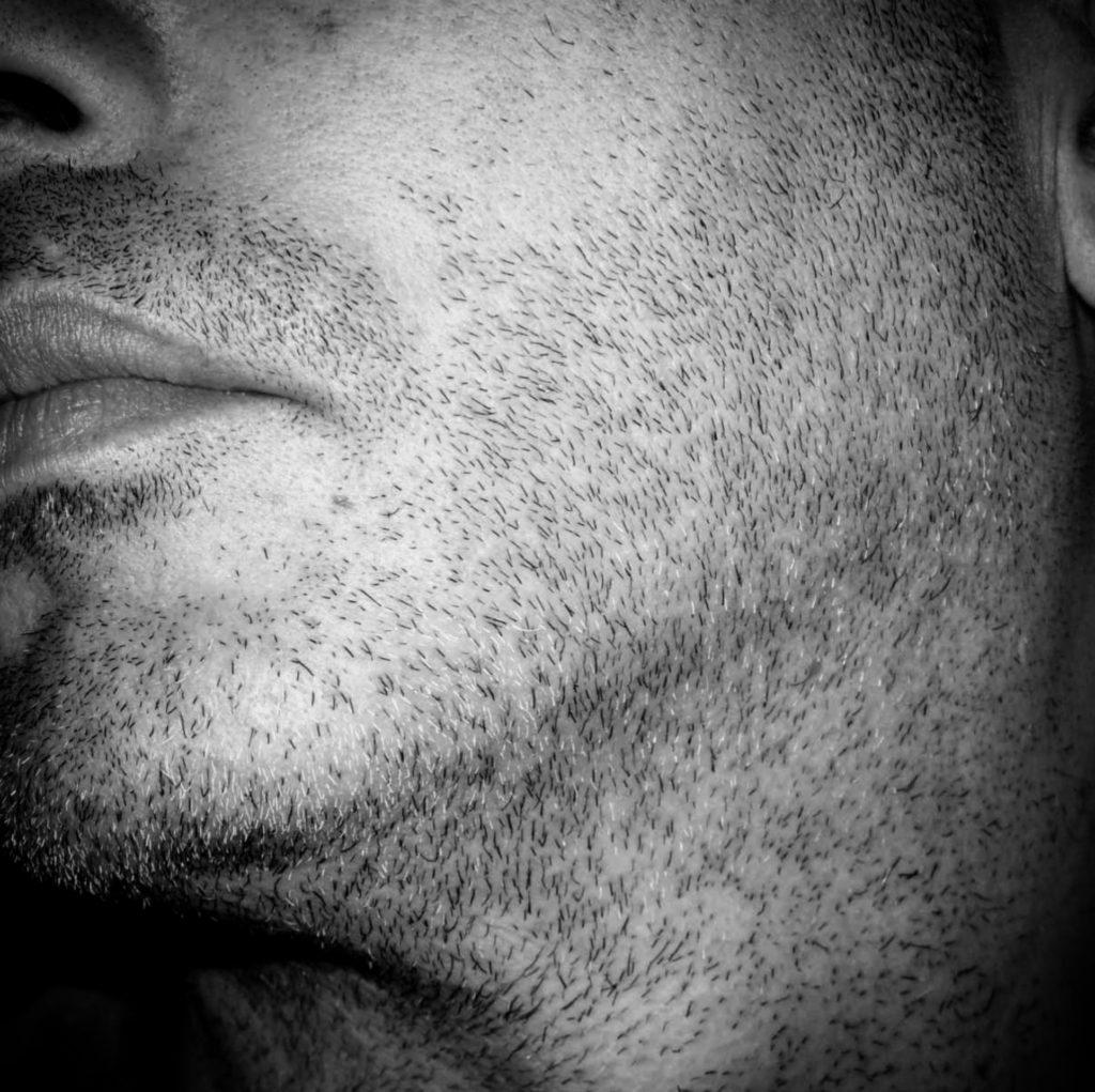 Mikropigmentacja Skóry Głowy Mikropigmentacja Medyczna Włosów Łódź Mikropigmentacja Głowy qwo