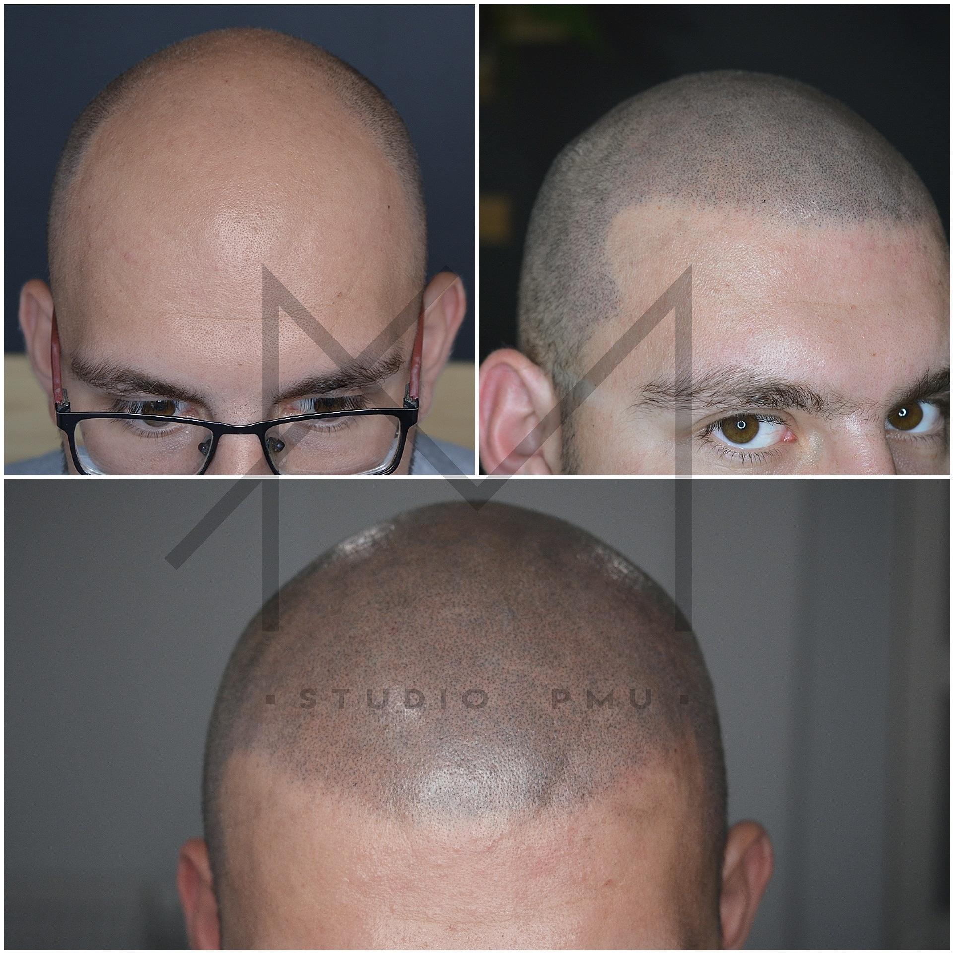 Mikropigmentacja Skóry Głowy Mikropigmentacja Medyczna Włosów Łódź Mikropigmentacja Głowy