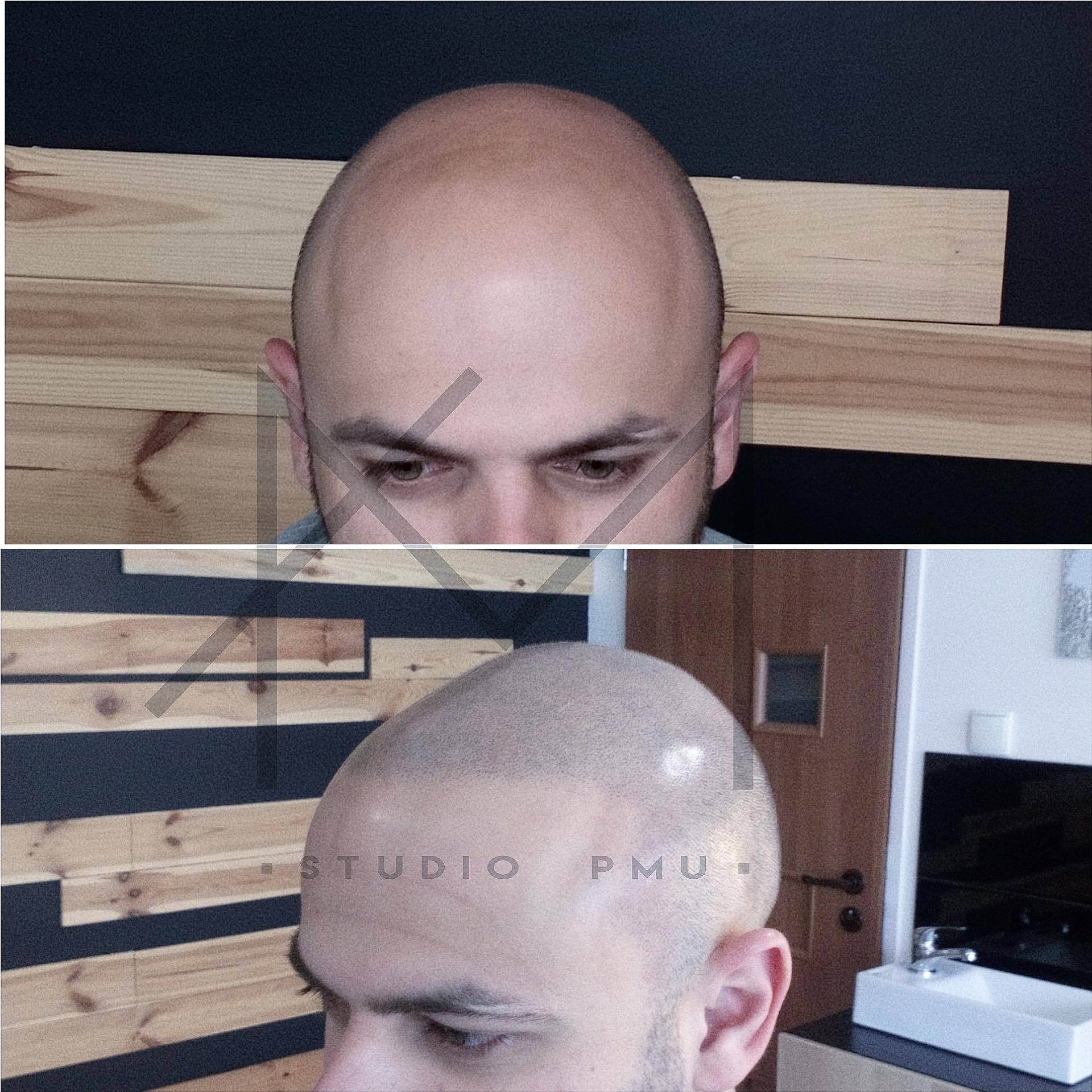 głowa męska po zabiegu mikropigmentacji