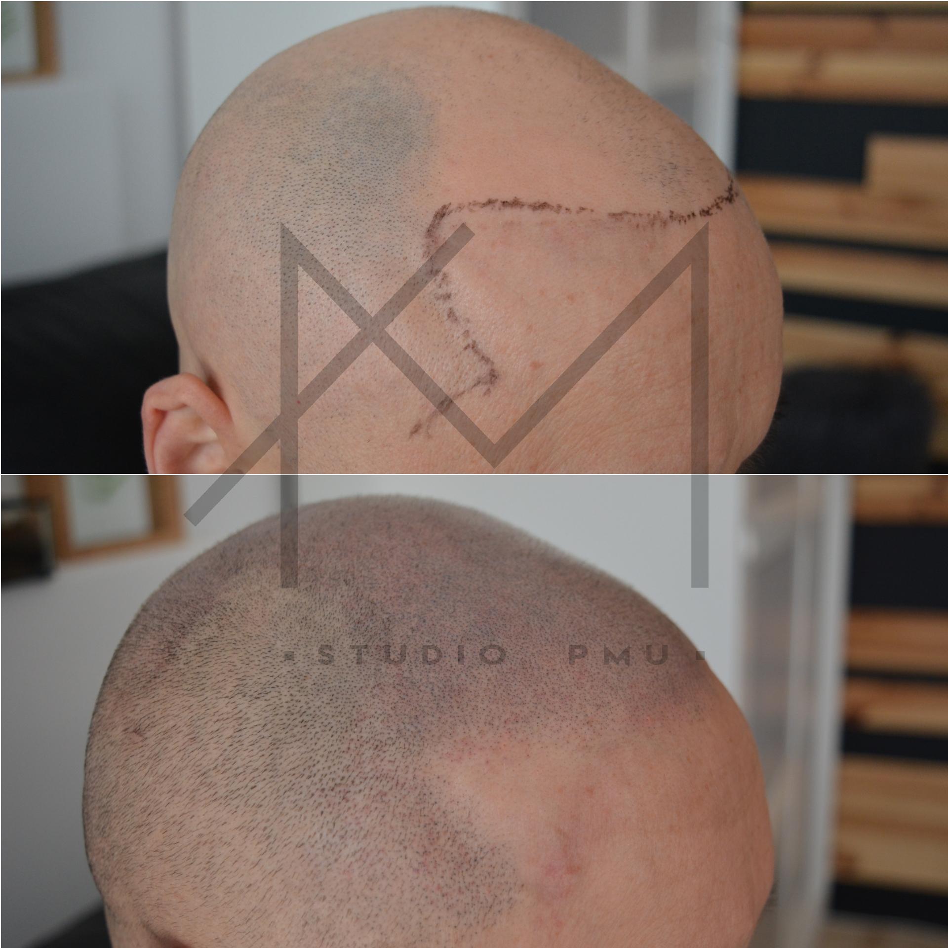 Mikropigmentacja Skóry Głowy Mikropigmentacja Medyczna Włosów Łódź Mikropigmentacja Głowy amstudiopmu