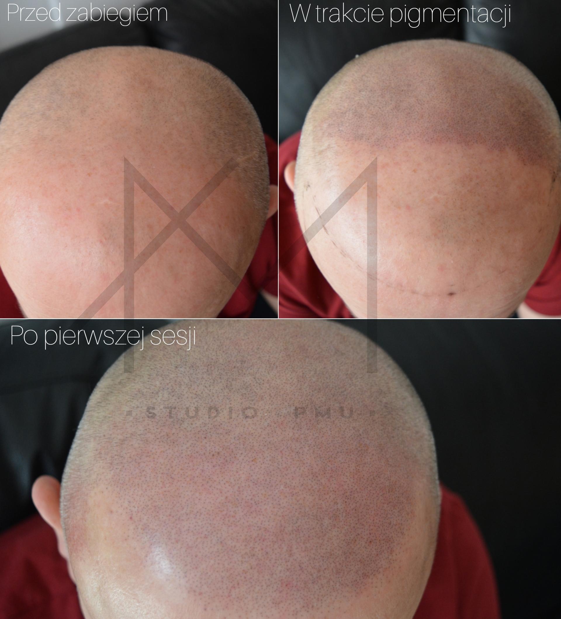 Mikropigmentacja Skóry Głowy Mikropigmentacja Medyczna Włosów Łódź Mikropigmentacja Głowy amstudiopmu uu
