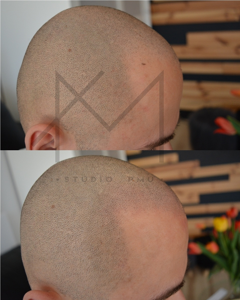 głowa męska po zabiegu mikropigmentacji skóry