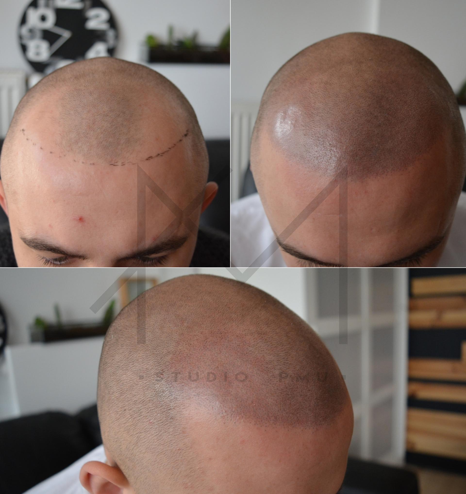 Mikropigmentacja Skóry Głowy Mikropigmentacja Medyczna Włosów Łódź Mikropigmentacja Głowy amstudiopmu uiu