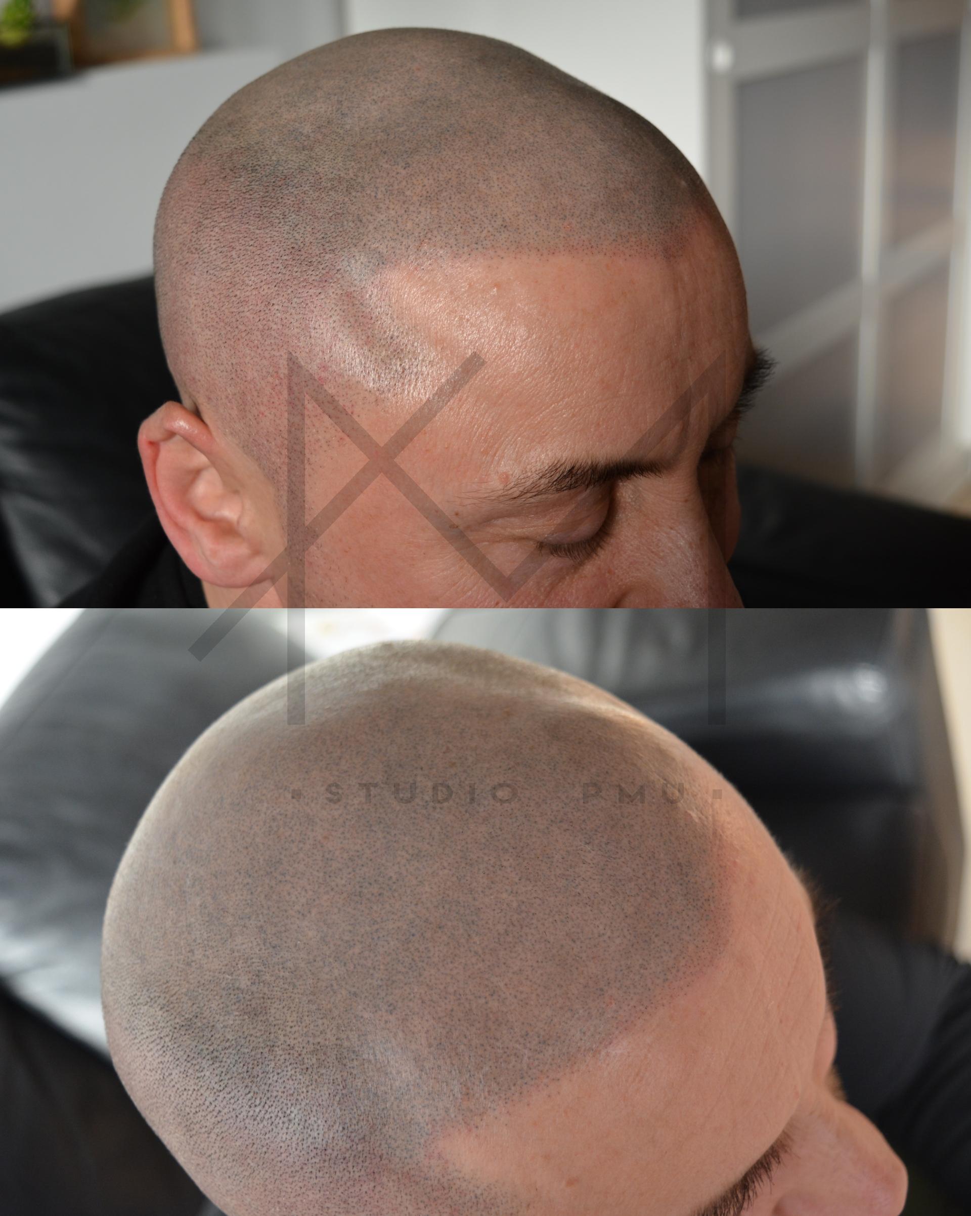 głowa po zabiegu mikropigmentacji