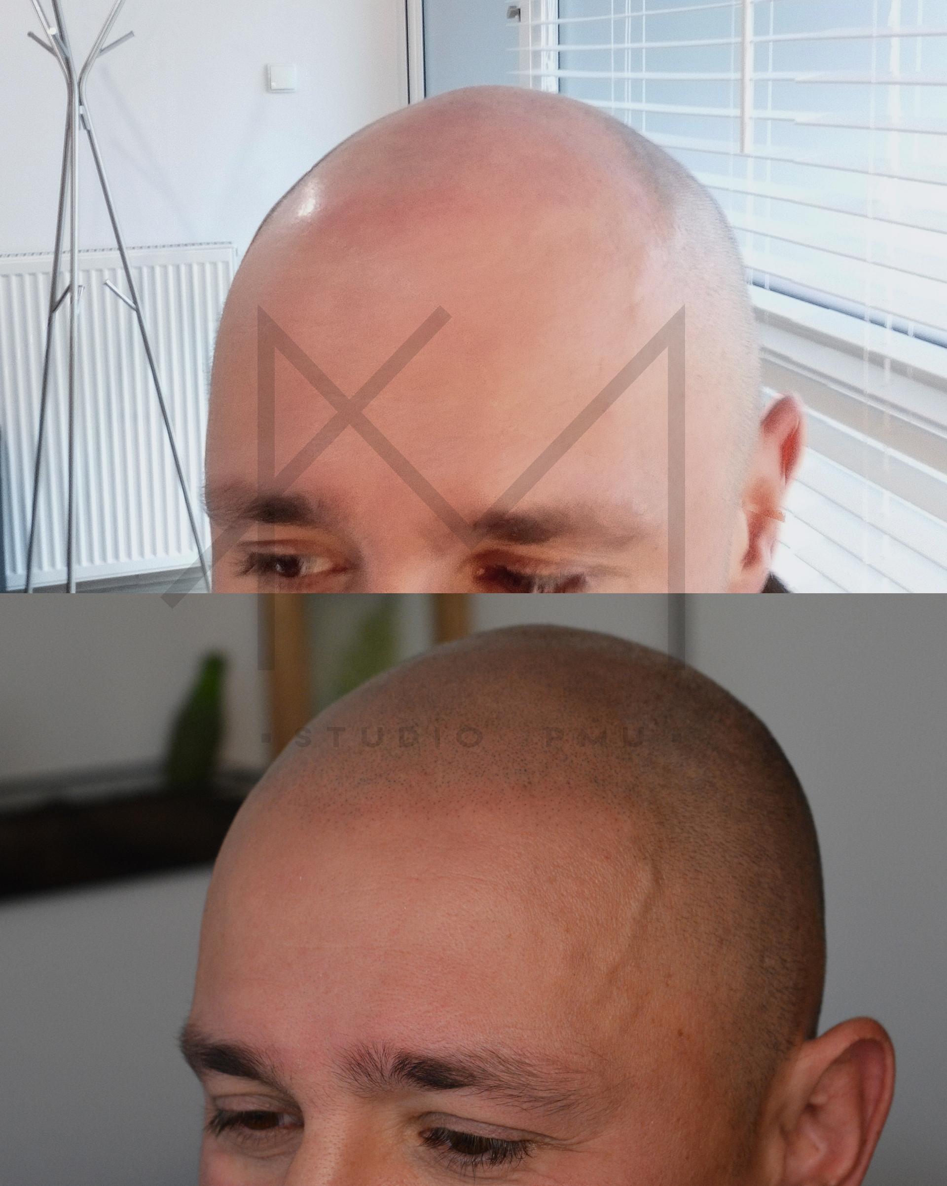 głowa z łysieniem androgenowym męskim