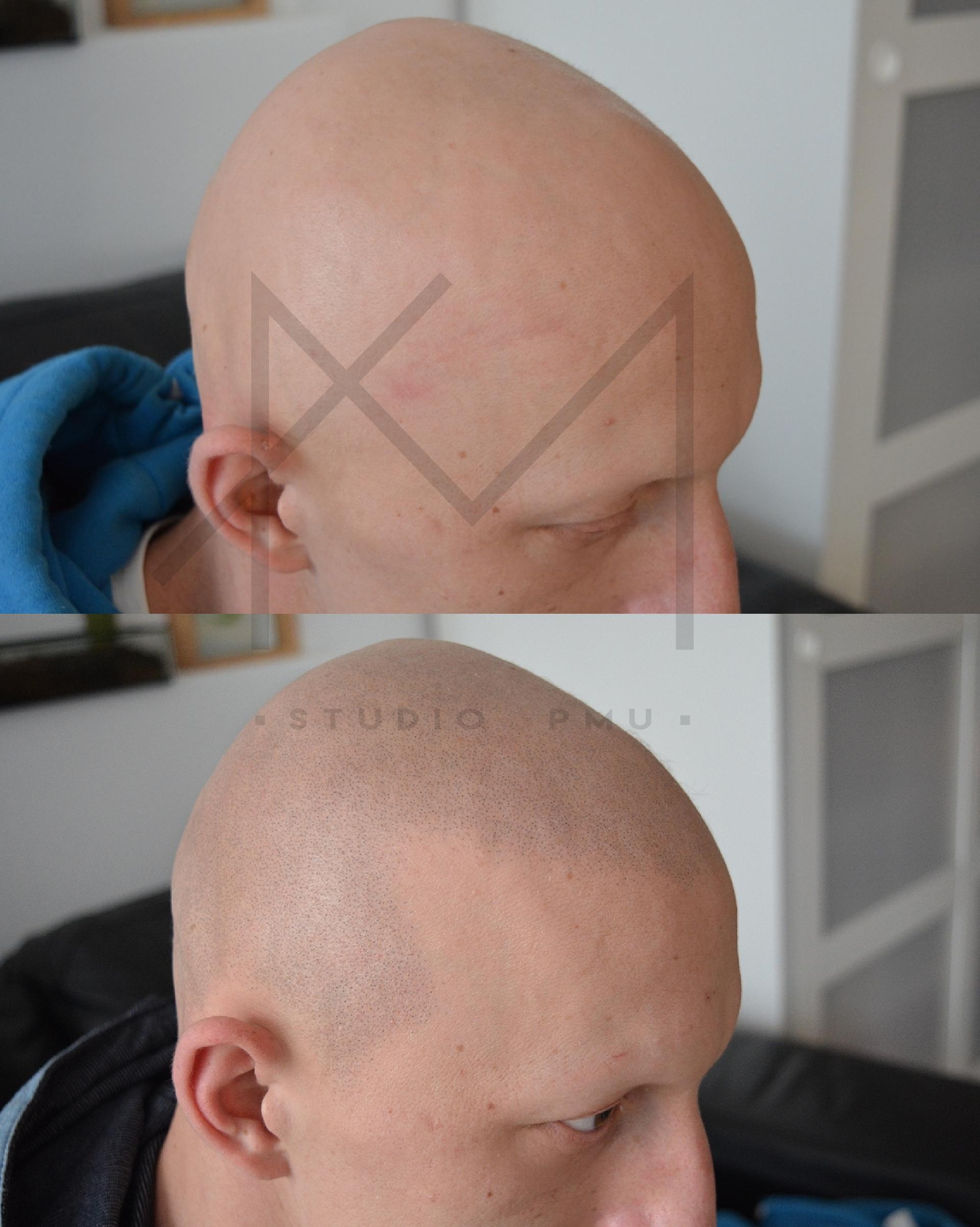łysienie plackowate androgenowe wykonana mikropigmentacja skóry głowy